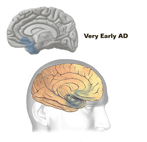 what is alzheimer's disease, dementia and memory loss?