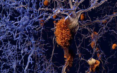 Tuesday Tips for Caregivers ~ A New Drug for Alzheimer's? What We Know So Far. . .